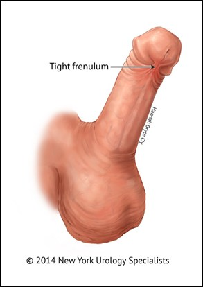 Urologist frenuloplasty procedure Alberta