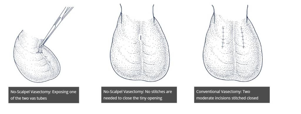 No scalpel no needle vasectomy is safe and effective